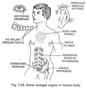 human-vestigial